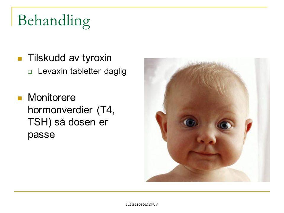 Behandling Tilskudd av tyroxin