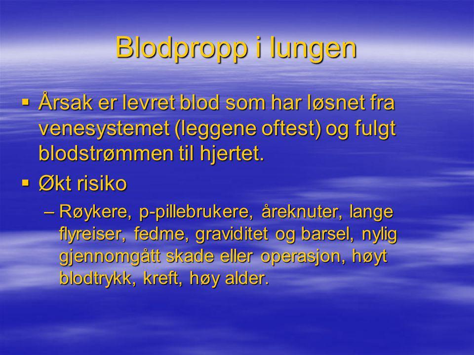 Blodpropp i lungen Årsak er levret blod som har løsnet fra venesystemet (leggene oftest) og fulgt blodstrømmen til hjertet.