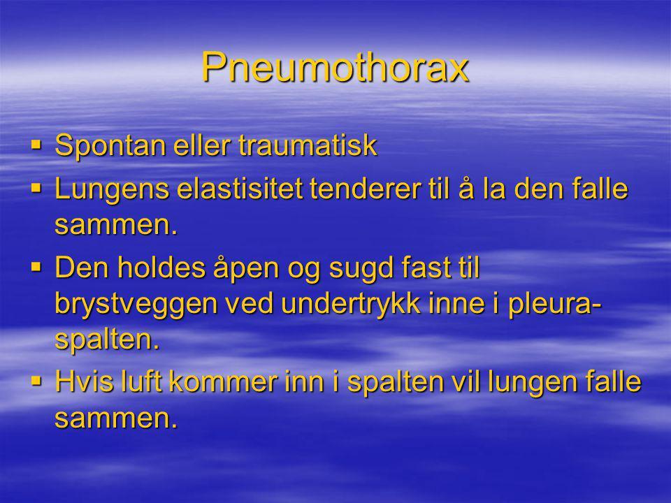 Pneumothorax Spontan eller traumatisk