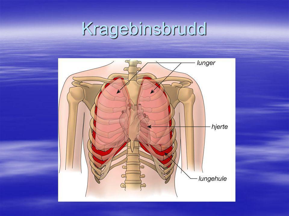 Kragebinsbrudd