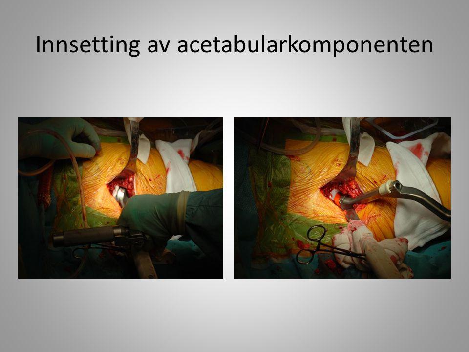 Innsetting av acetabularkomponenten