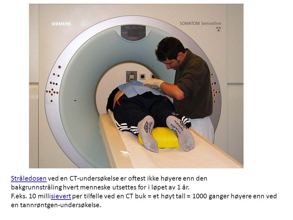 Stråledosen ved en CT-undersøkelse er oftest ikke høyere enn den