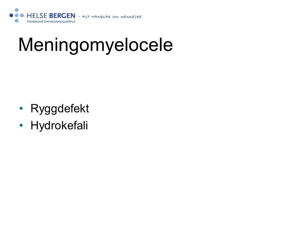 Meningomyelocele Ryggdefekt Hydrokefali