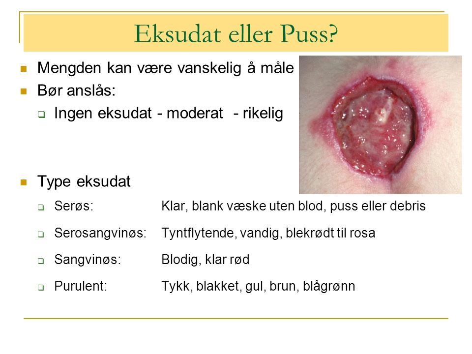 Eksudat eller Puss Mengden kan være vanskelig å måle Bør anslås: