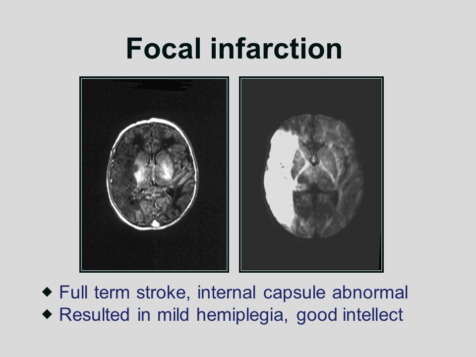 Focal infarction Full term stroke, internal capsule abnormal