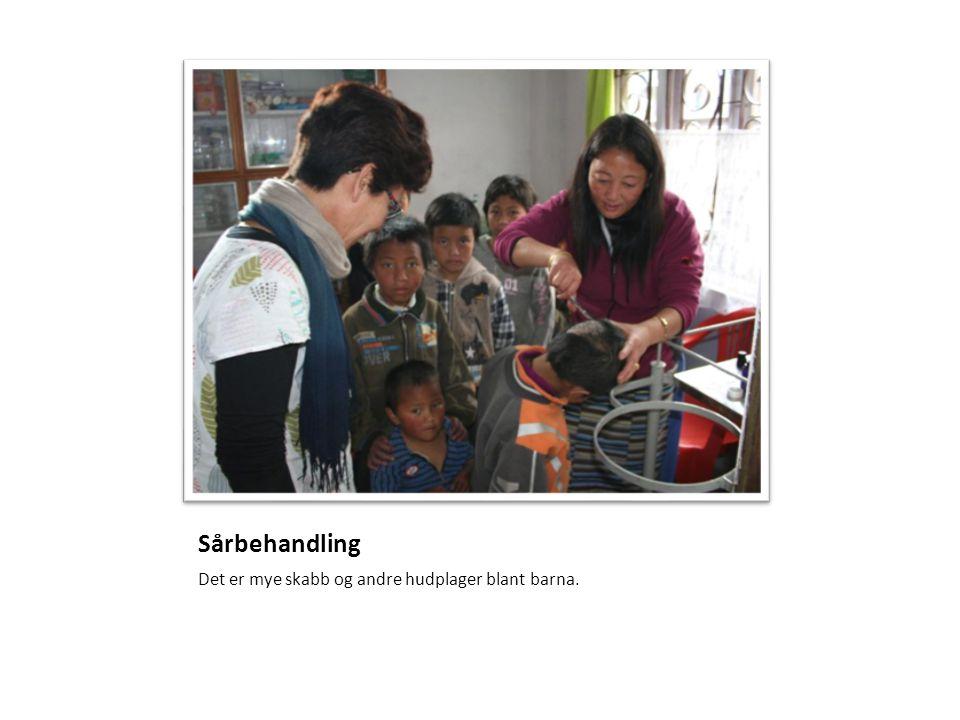 Sårbehandling Det er mye skabb og andre hudplager blant barna.