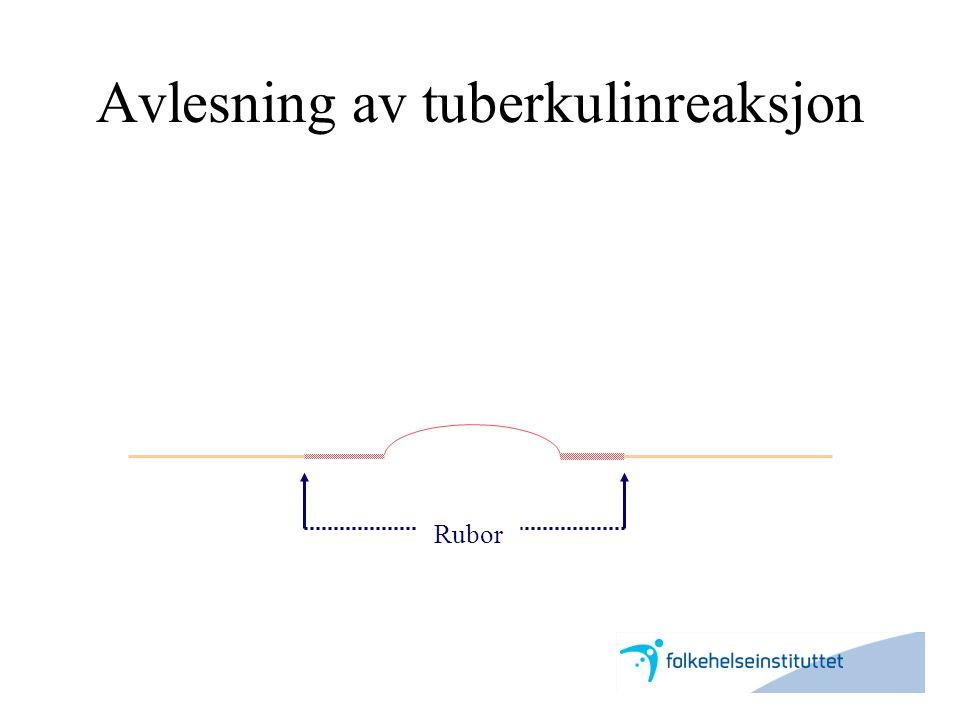 Avlesning av tuberkulinreaksjon