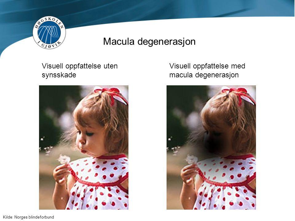 Macula degenerasjon Visuell oppfattelse uten synsskade