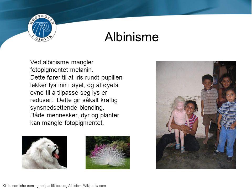 Albinisme Ved albinisme mangler fotopigmentet melanin.