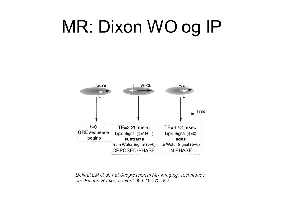 MR: Dixon WO og IP Delfaut EM et al. Fat Suppression in MR Imaging: Techniques.