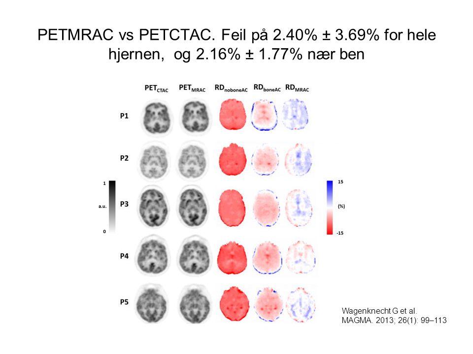 PETMRAC vs PETCTAC. Feil på 2. 40% ± 3. 69% for hele hjernen, og 2
