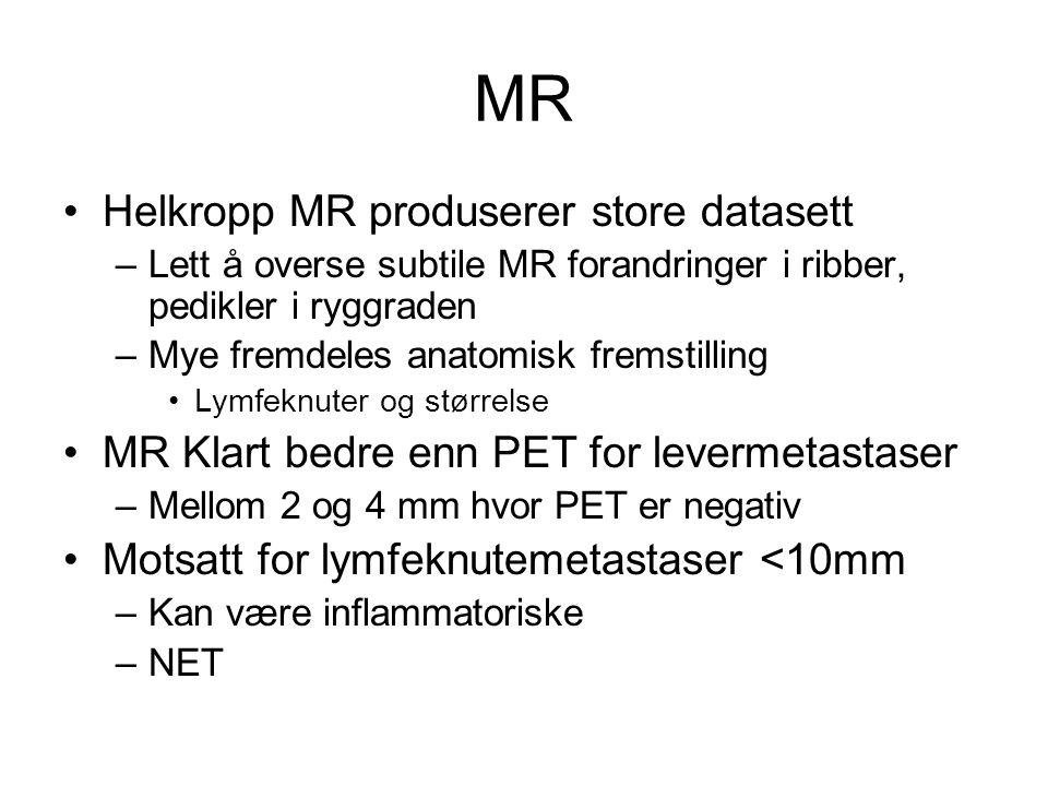 MR Helkropp MR produserer store datasett