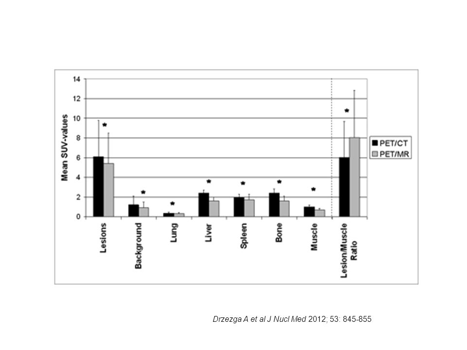 Drzezga A et al J Nucl Med 2012; 53: 845-855