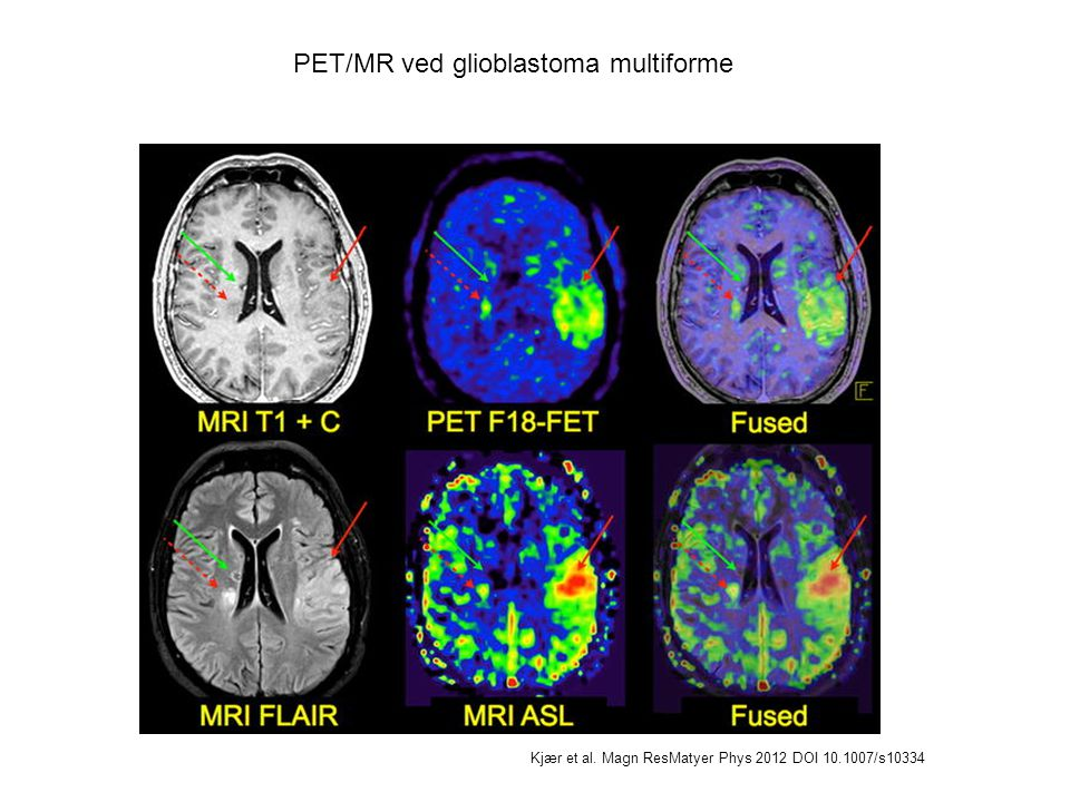 PET/MR ved glioblastoma multiforme