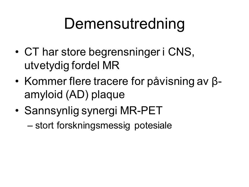 Demensutredning CT har store begrensninger i CNS, utvetydig fordel MR