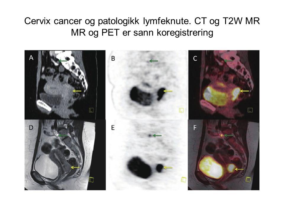 Cervix cancer og patologikk lymfeknute