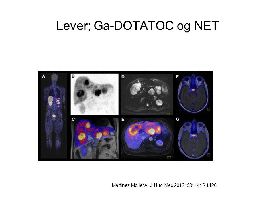 Lever; Ga-DOTATOC og NET