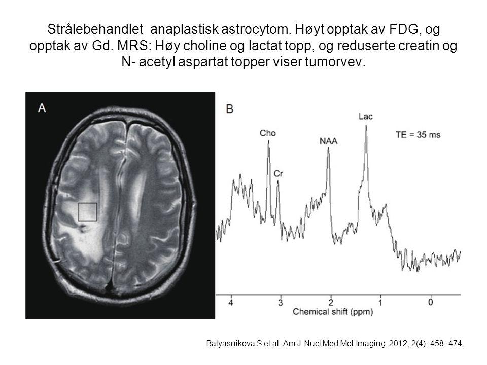 Strålebehandlet anaplastisk astrocytom
