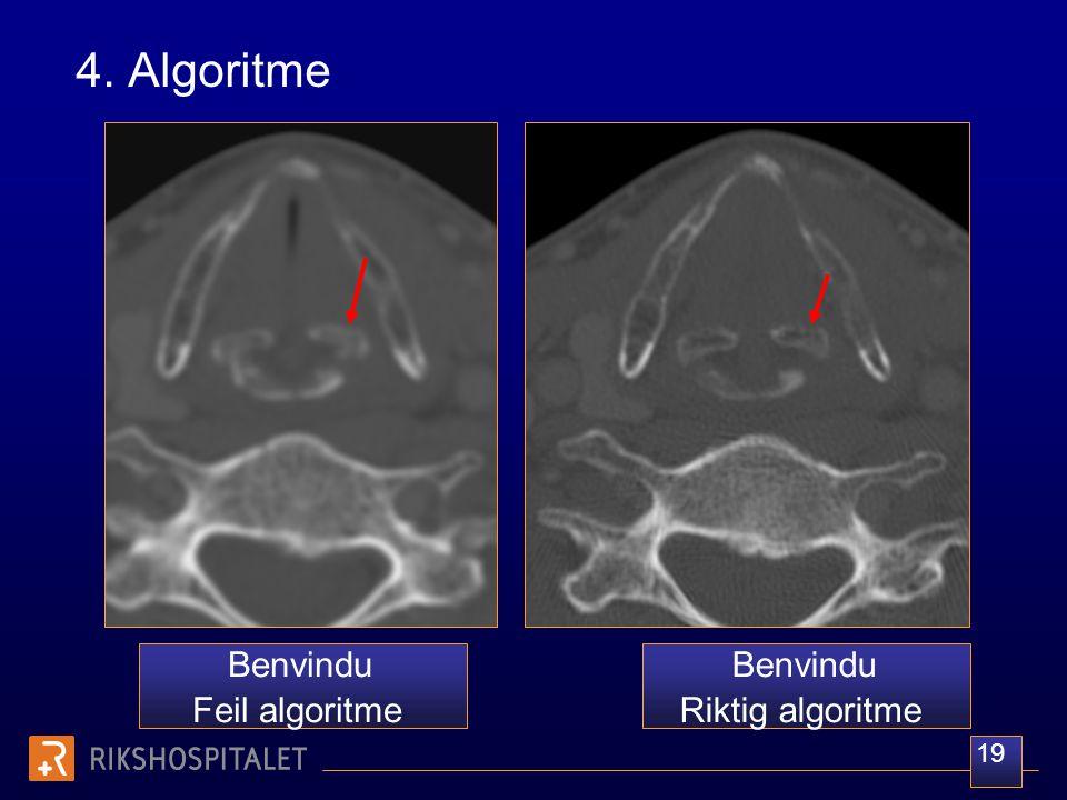 4. Algoritme Benvindu Feil algoritme Benvindu Riktig algoritme 19
