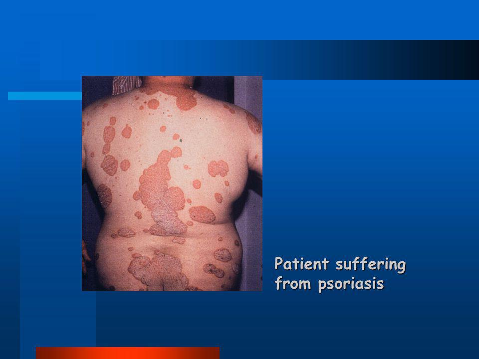 Patient suffering from psoriasis