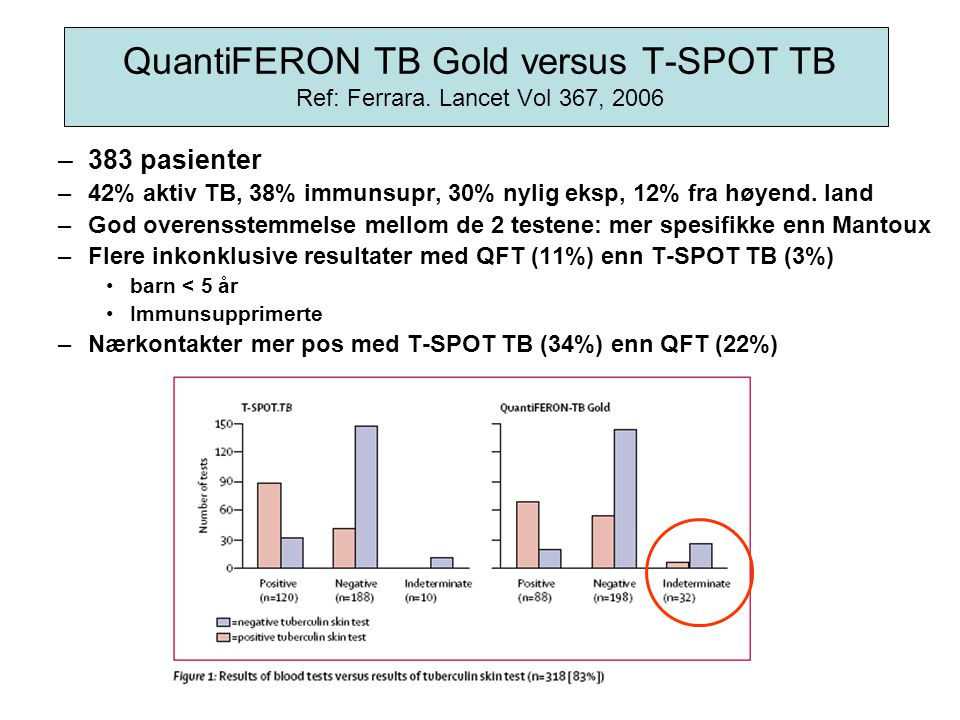 QuantiFERON TB Gold versus T-SPOT TB Ref: Ferrara. Lancet Vol 367, 2006