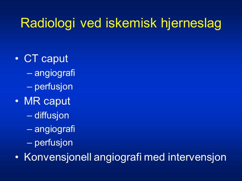 Radiologi ved iskemisk hjerneslag