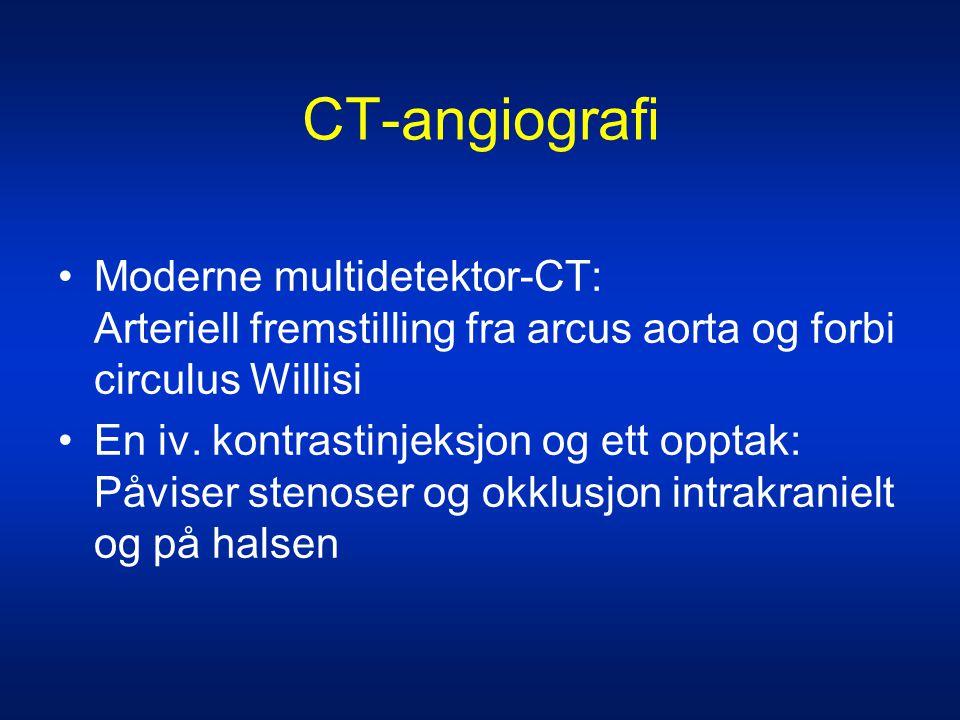 CT-angiografi Moderne multidetektor-CT: Arteriell fremstilling fra arcus aorta og forbi circulus Willisi.