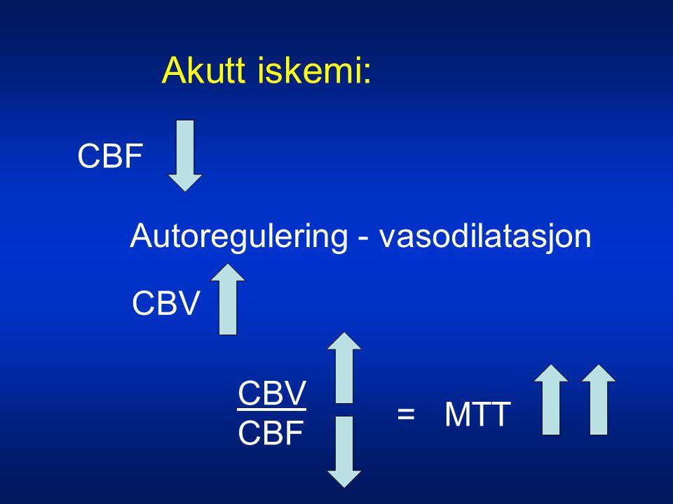 Akutt iskemi: CBF Autoregulering - vasodilatasjon CBV CBV CBF = MTT