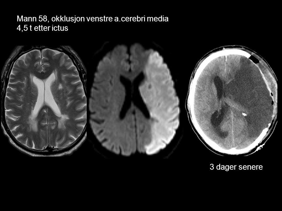 Mann 58, okklusjon venstre a.cerebri media 4,5 t etter ictus