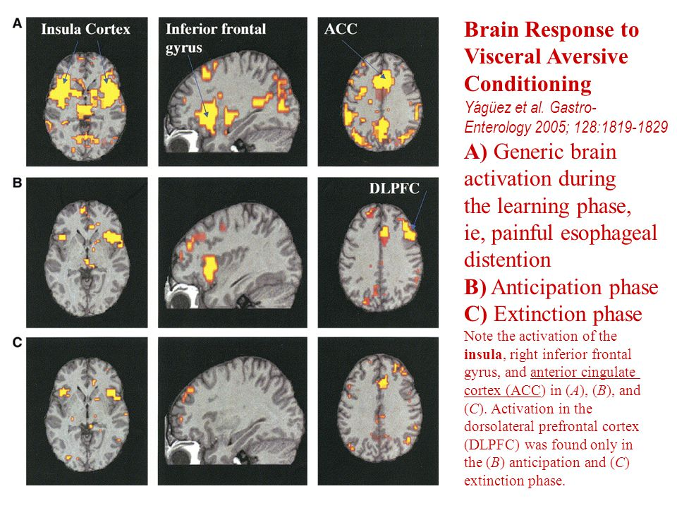 Brain Response to Visceral Aversive Conditioning A) Generic brain