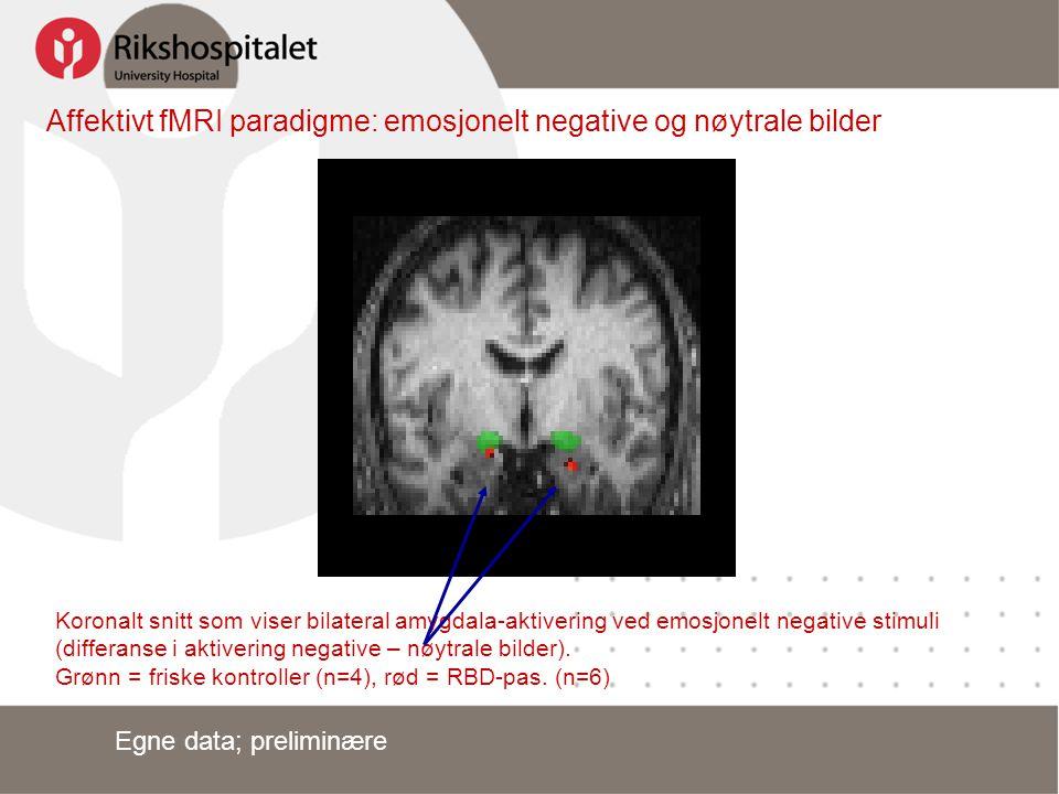 Affektivt fMRI paradigme: emosjonelt negative og nøytrale bilder