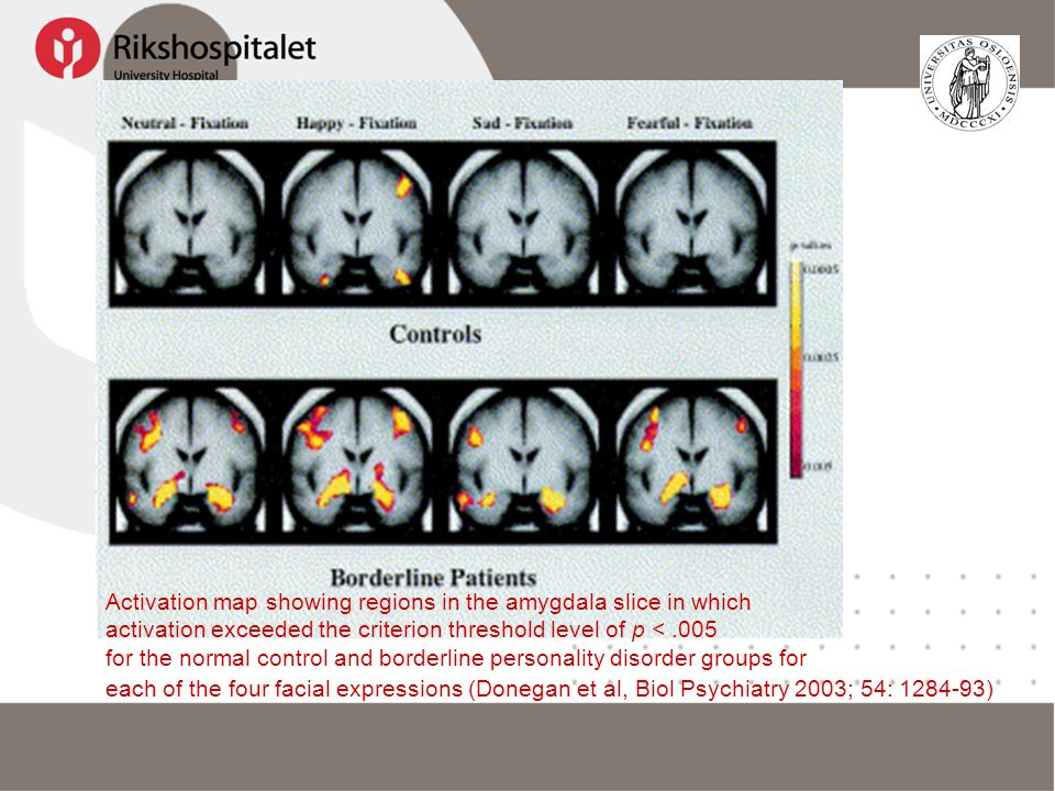 Activation map showing regions in the amygdala slice in which