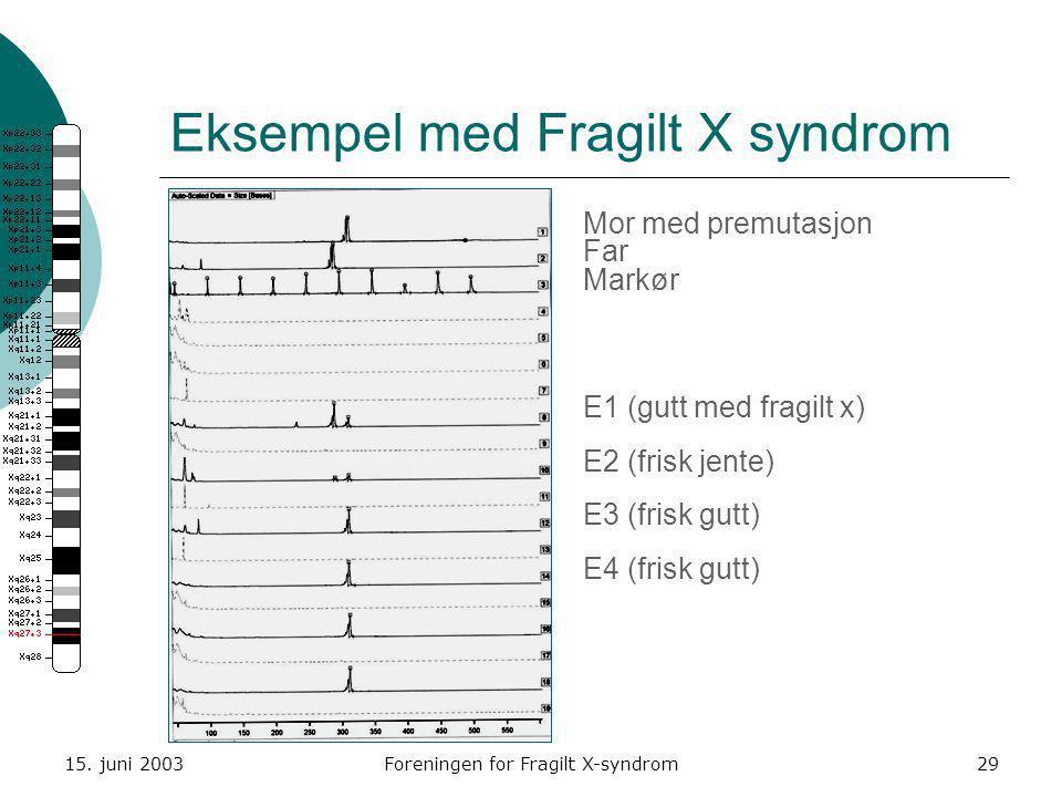 Eksempel med Fragilt X syndrom