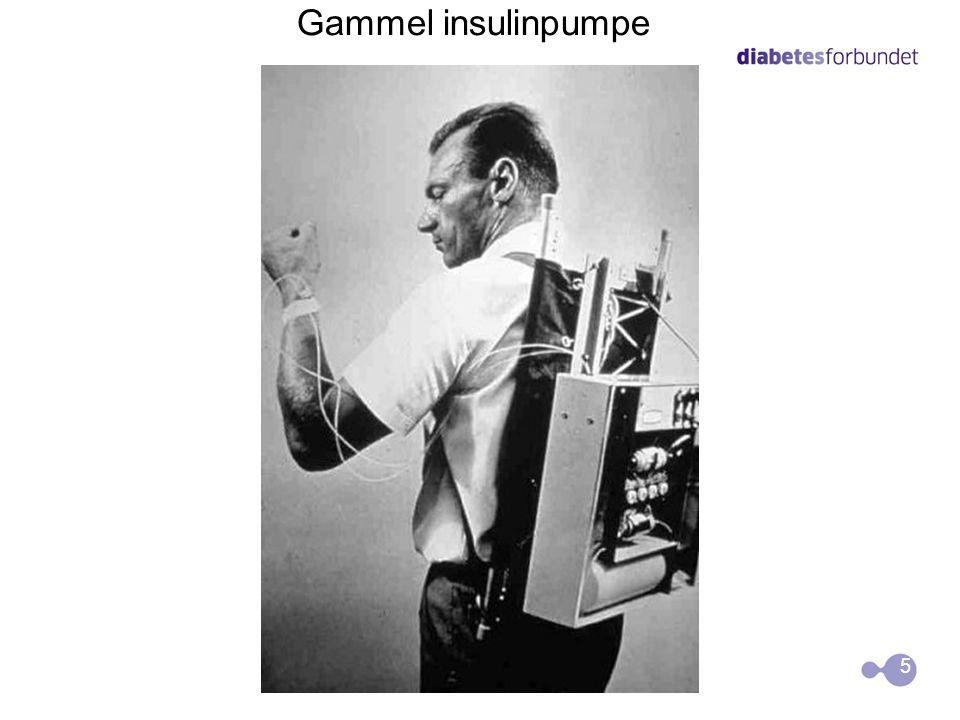Gammel insulinpumpe 5 5