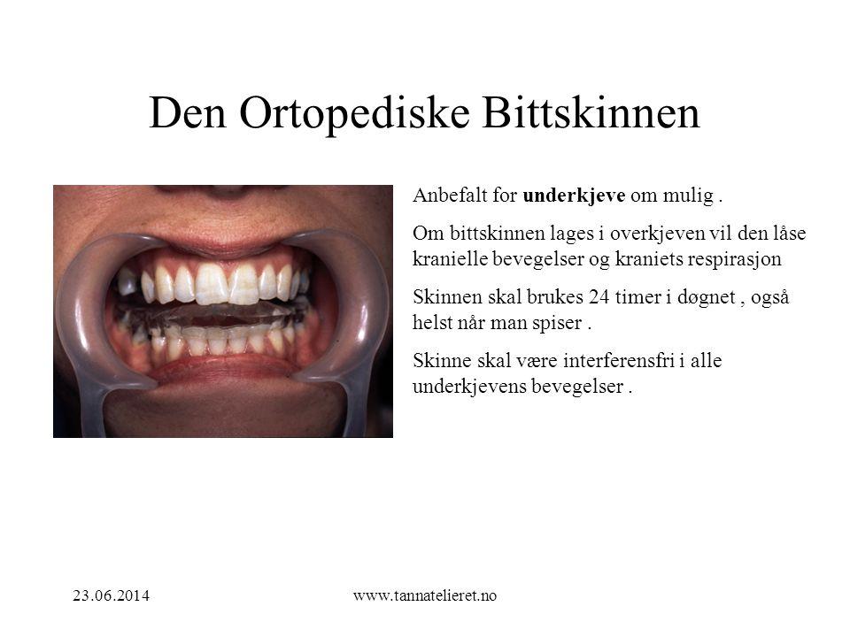 Den Ortopediske Bittskinnen