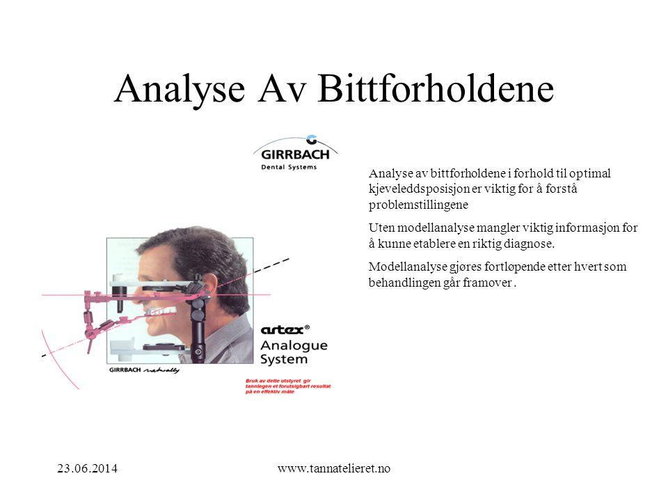 Analyse Av Bittforholdene