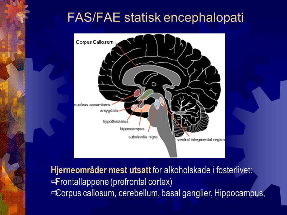 FAS/FAE statisk encephalopati