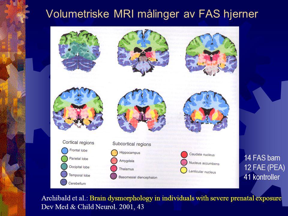 Volumetriske MRI målinger av FAS hjerner