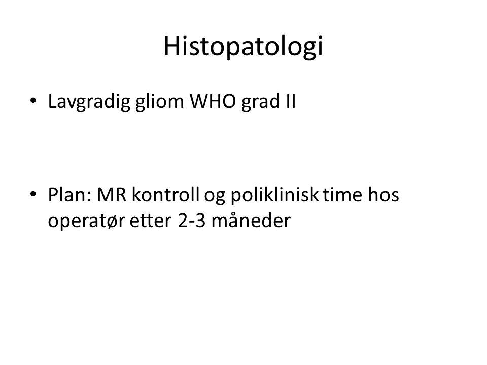 Histopatologi Lavgradig gliom WHO grad II