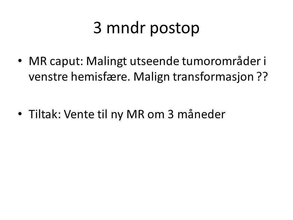 3 mndr postop MR caput: Malingt utseende tumorområder i venstre hemisfære. Malign transformasjon