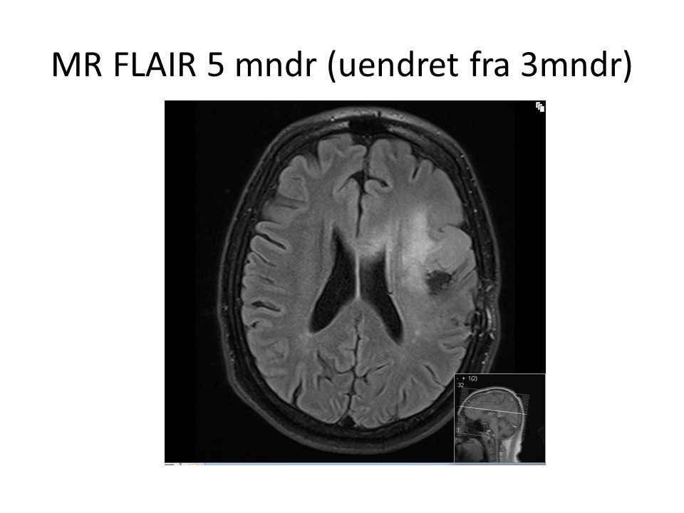 MR FLAIR 5 mndr (uendret fra 3mndr)