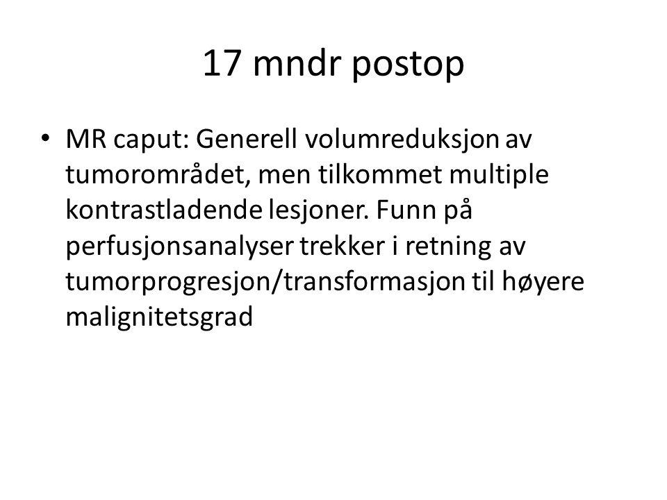 17 mndr postop