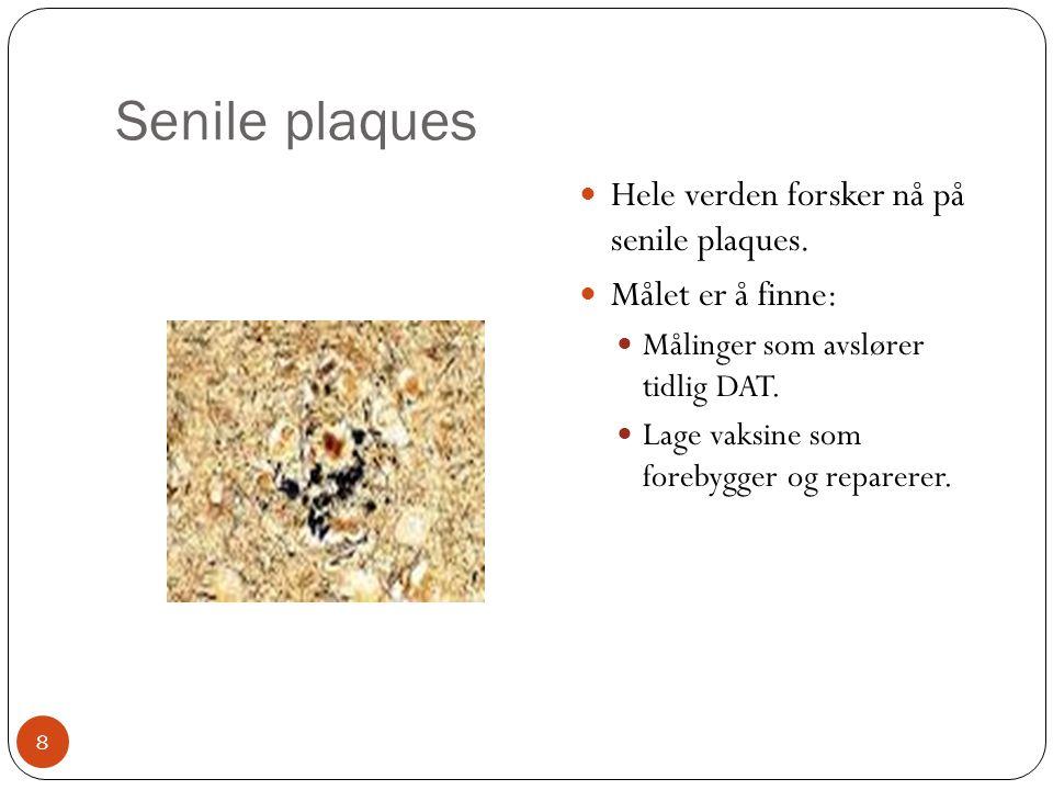 Senile plaques Hele verden forsker nå på senile plaques.