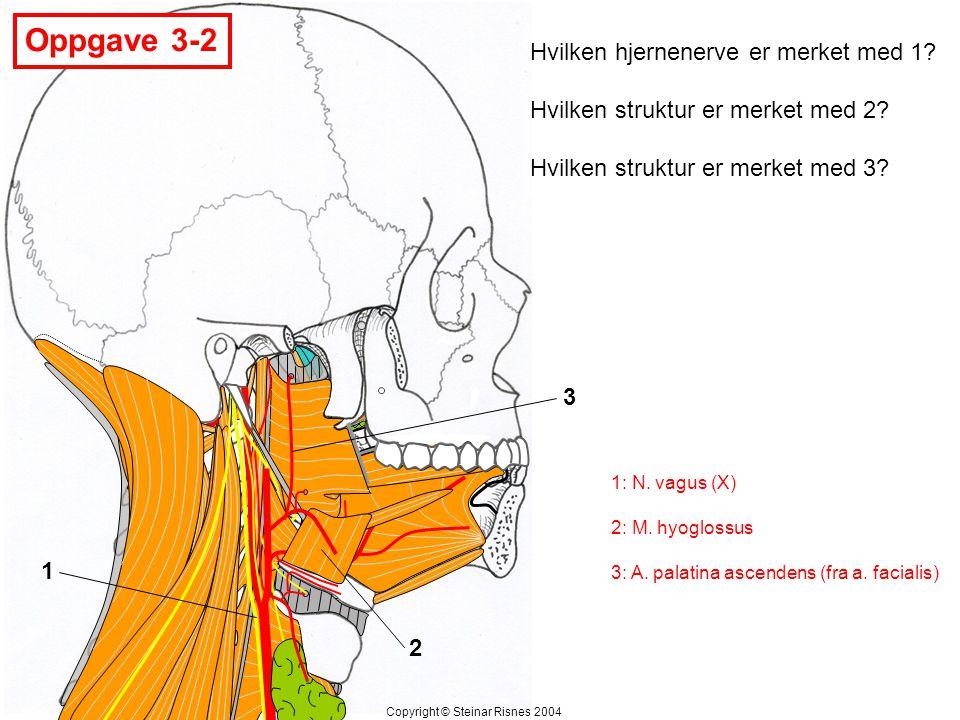Oppgave 3-2 Hvilken hjernenerve er merket med 1
