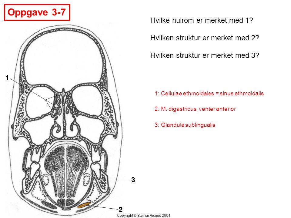 Oppgave 3-7 Hvilke hulrom er merket med 1