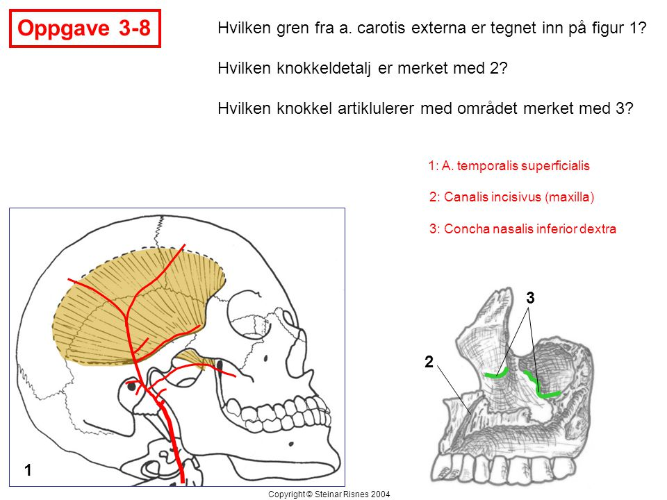 Oppgave 3-8 Hvilken gren fra a. carotis externa er tegnet inn på figur 1 Hvilken knokkeldetalj er merket med 2
