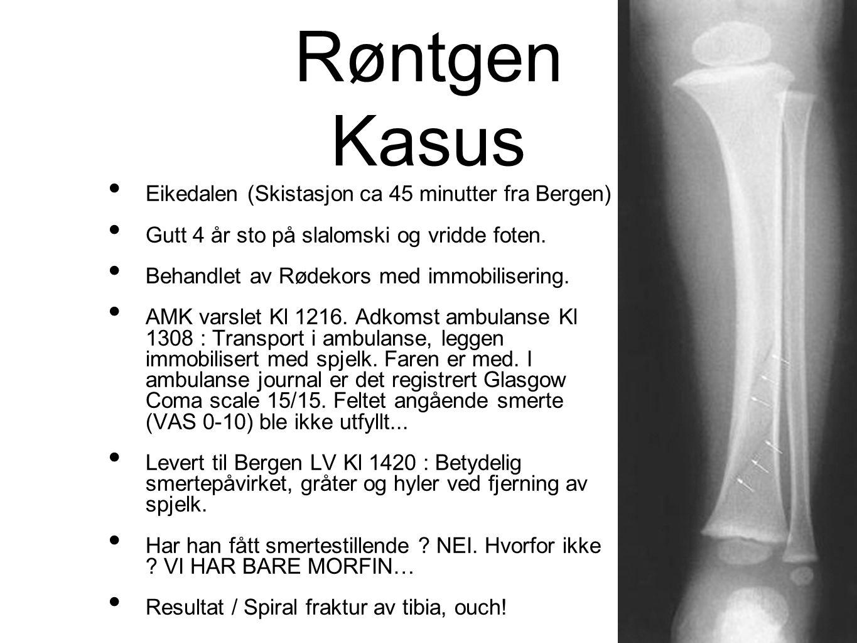 Røntgen Kasus Eikedalen (Skistasjon ca 45 minutter fra Bergen)