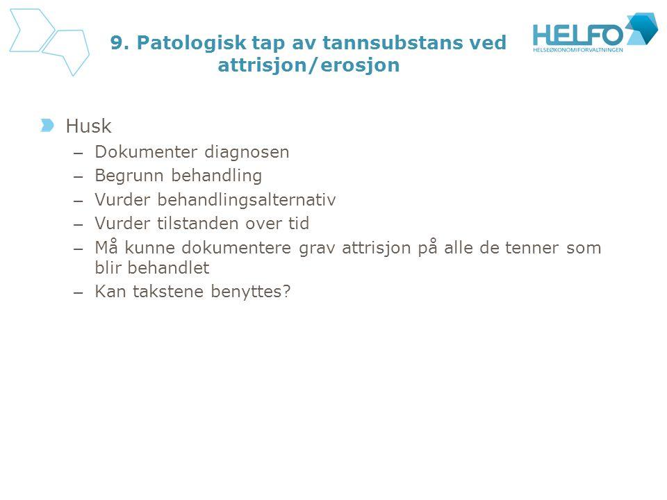 9. Patologisk tap av tannsubstans ved attrisjon/erosjon
