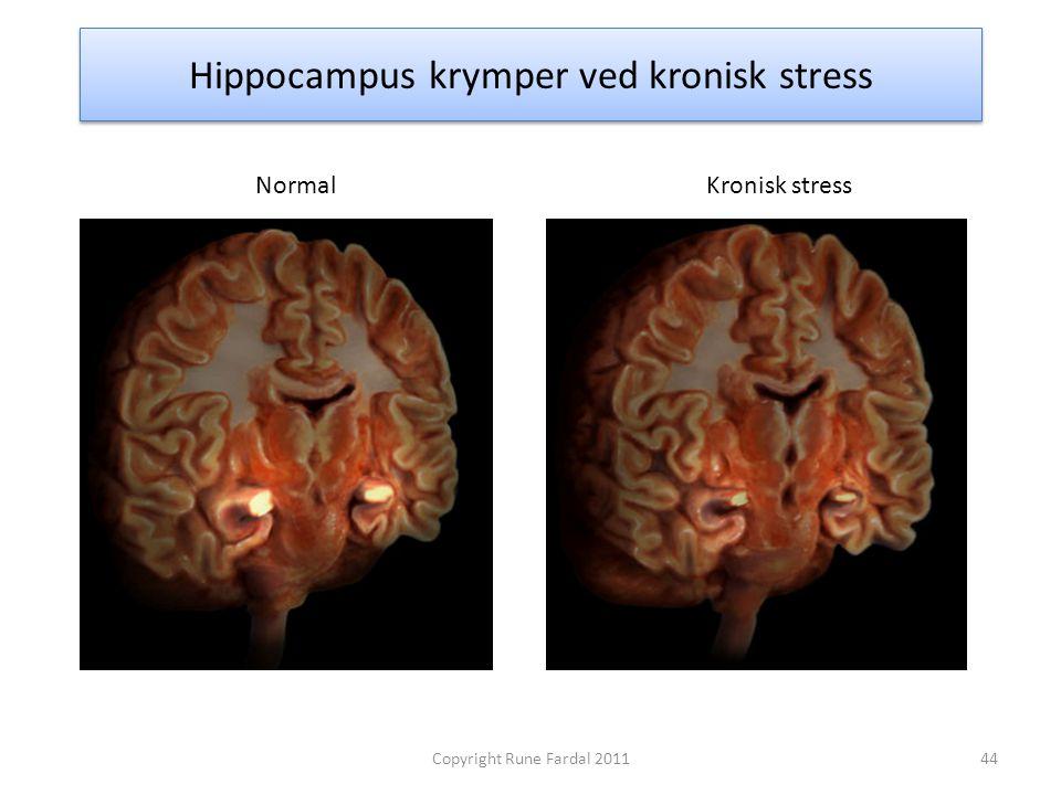Hippocampus krymper ved kronisk stress