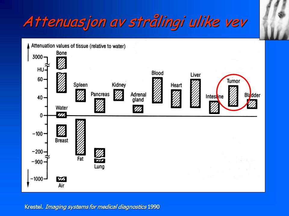 Attenuasjon av strålingi ulike vev
